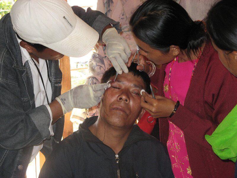 Minor surgery at Health Clinic in Tawal